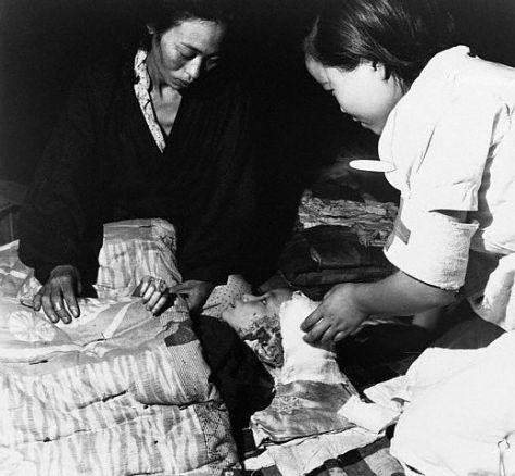 Caring for Victim of Hiroshima Bombing