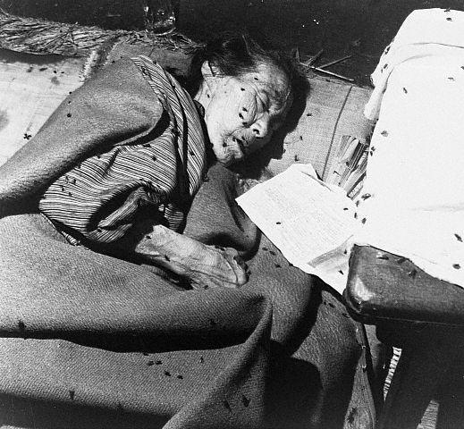 Victim of Hiroshima Bombing